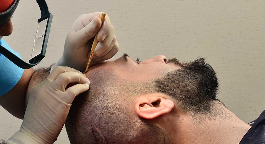 El trasplante de cabello DHI