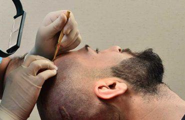 Saç ekimi istanbul